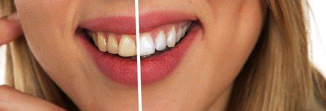שיני בינה: למה הן נוצרות - והאם חייבים לעקור?