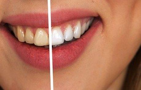 שיני בינה: למה הן נוצרות – והאם חייבים לעקור?